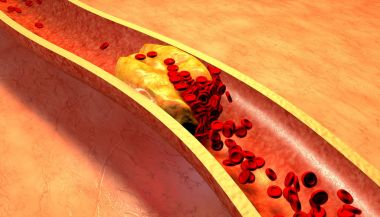 depositphotos_67100229-stock-photo-clogged-artery-with-platelets-and.jpg