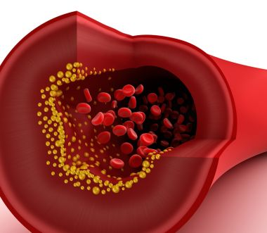 depositphotos_18542369-stock-photo-closeup-view-of-cholesterol-plaque.jpg