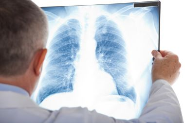 depositphotos_30135963-stock-photo-senior-doctor-examining-a-lung.jpg