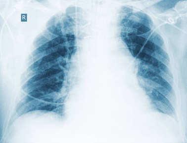 depositphotos_147474165-stock-photo-radiological-control-of-hypostatic-pneumonia.jpg